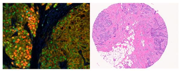 Breast cancer cellular tissue images