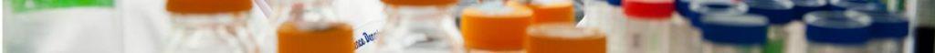 image of bottle tops